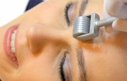 services-derma-roller